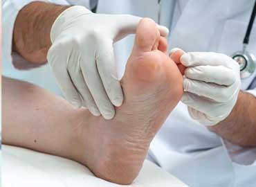 Santé des pieds