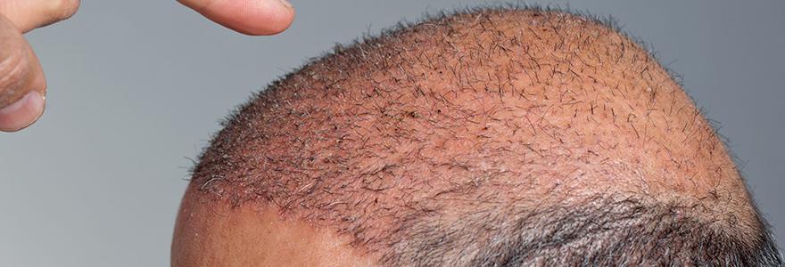 traitement PRP cheveux