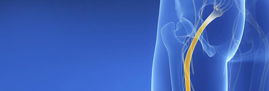 douleur du nerf sciatique